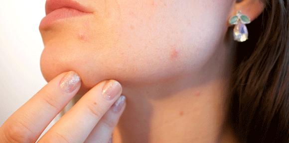Aknasta koža